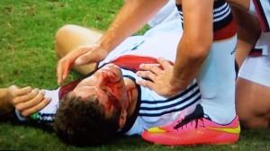 ミュラー 流血 ワールドカップ2014
